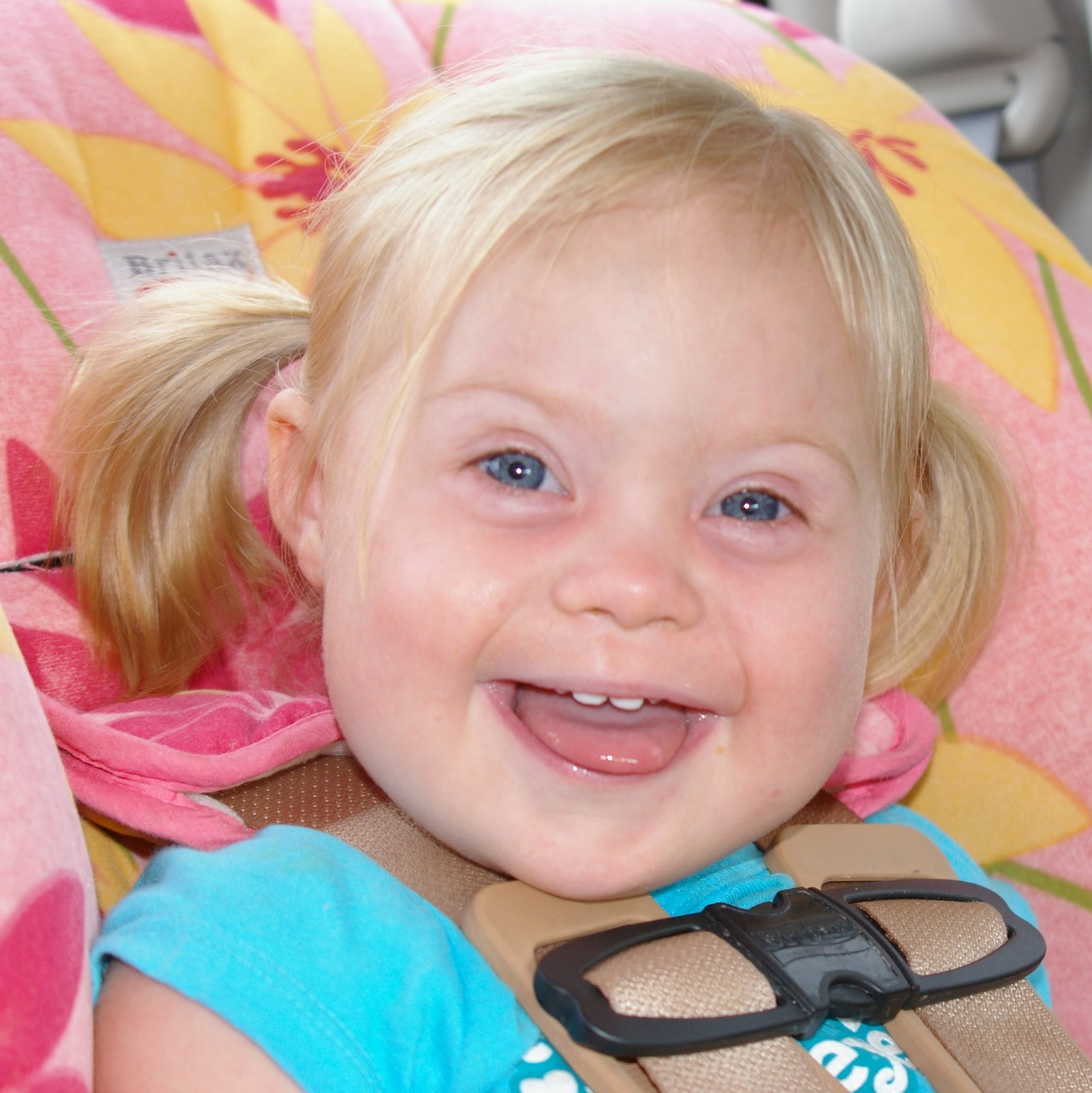 Даун синдром детей 94